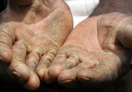Ayomiro Aderin- Crocodile Hands